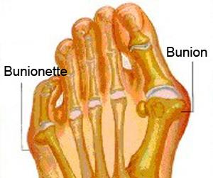 Bunion - Bunionette