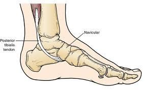 posterior tibial tendon