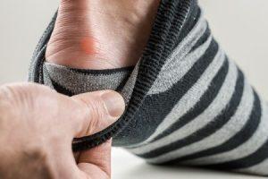 foot blister prevention