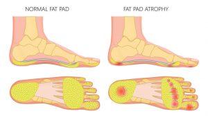 fat pad atrophy, aging feet