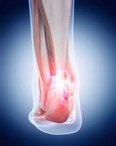 Achilles tendon, aging feet