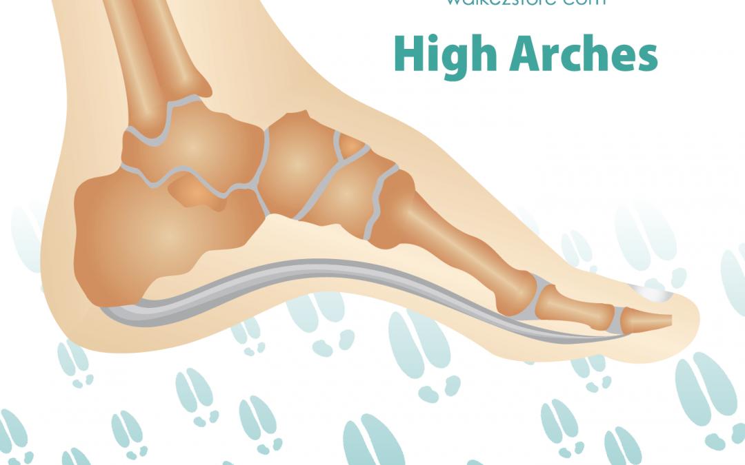 High_arches